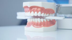 Options for Braces