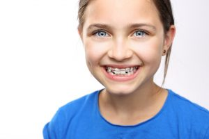 Do All Your Baby Teeth Need To Fall Out Before You Get Braces